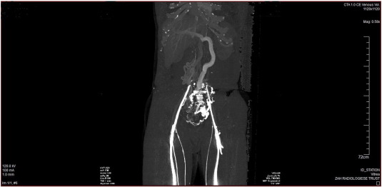 CT angiography image demonstrating absence of the infra- and suprarenal portions ...