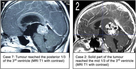 MRI images of the tumor location with respect to the third ventricle.