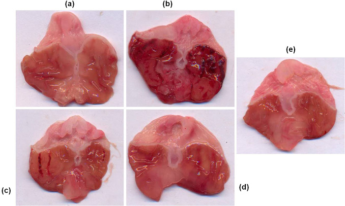 Macroscopic examination of gastric mucosal changes in ethanol and vanillin ...