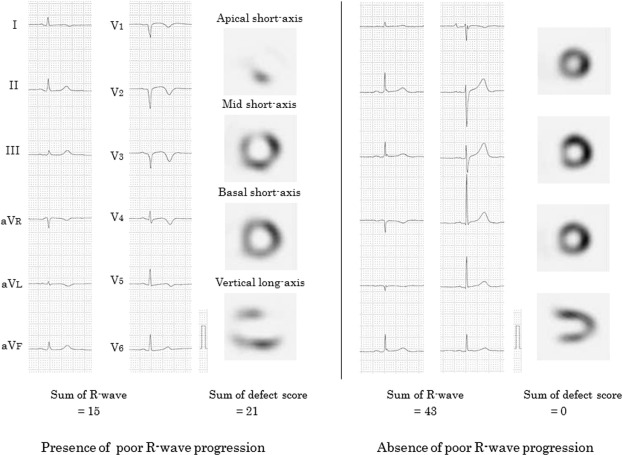 Electrocardiogram and SPECT images in cases of the presence or absence of poor ...