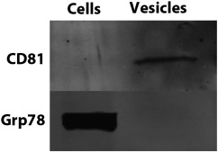 Western blot results. CD81 is present in extracellular vesicle (EV) (labeled ...