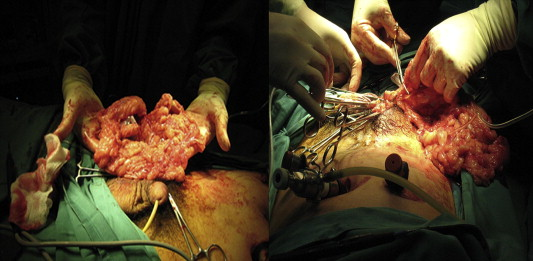 Excision of the omentum was performed when encountered upon opening of the ...