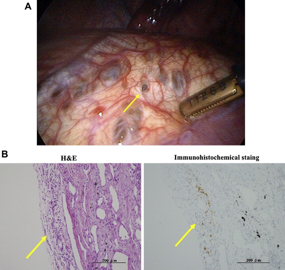 (A) Intraoperative findings of a perforation-like lesion in the tendinous part ...