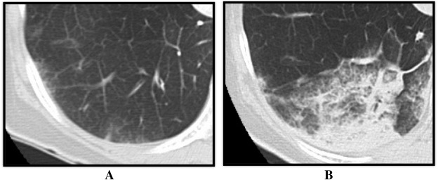 Representative case of computed tomography imaging of the reperfusion pulmonary ...
