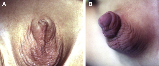 Appearance of the penis (A) before and (B) 1 month after the operation.