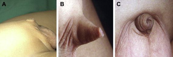 (A) Group A: severe penile skin deficiency; (B) Group B: moderate penile skin ...