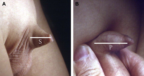 (A) Measuring the length of penile skin (S) with no or mild skin stretch; (B) ...