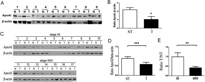 Lower apolipoprotein A1 (ApoA1) expression in the tissues of (A, B) gastric ...