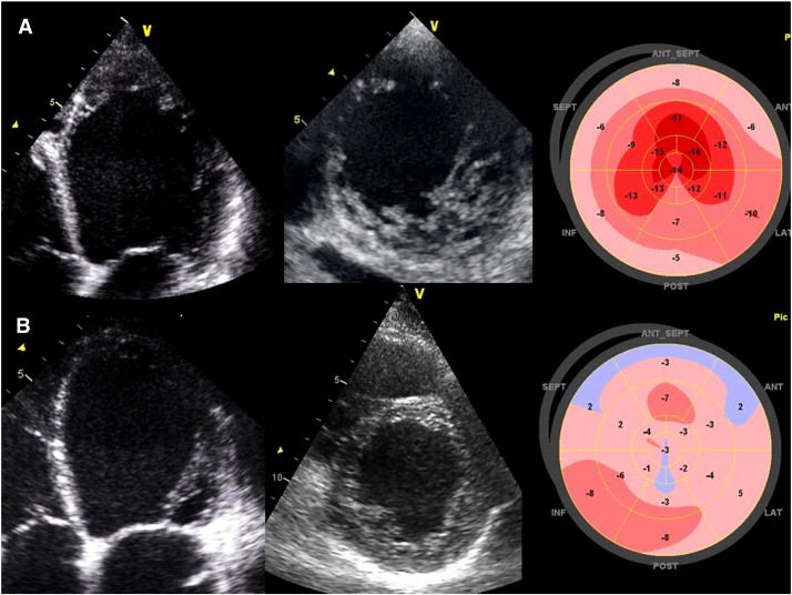 2D Myocardial deformation pattern of a dilated cardiomyopathy and a left ...