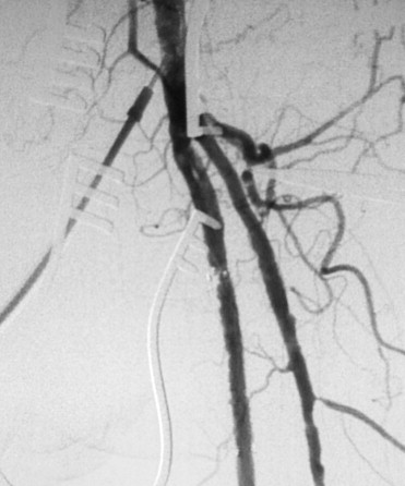 Recanalization by endarterectomy of the superficial femoral artery ostium is ...