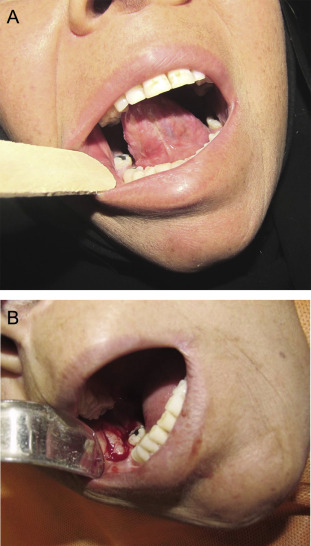 (A) Obliteration of the mandibular vestibule. (B) Alloderm is used for covering ...
