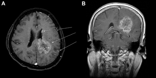 Magnetic resonance imaging of the patients brain. (A) Axial T1-weighted image ...