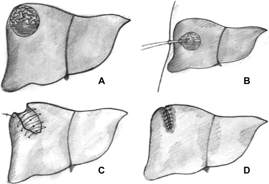 The schematic figure of tube drainage versus capitonnage. (A) The primary cyst. ...