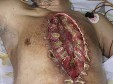 Patient with whole sternum necrosis and heart exposure prior to debridement.