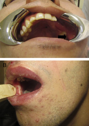 Scar in buccal mucosa related to the superiorly-based FAMM flap. (A) Left side. ...