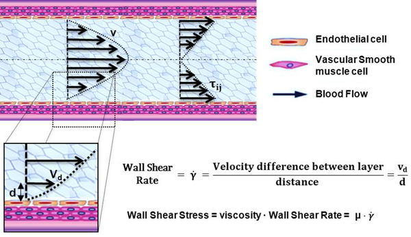 Computational fluid dynamics indicators to improve cardiovascular